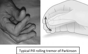 Parkinson tremor