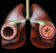Normal and Inflamed Airway