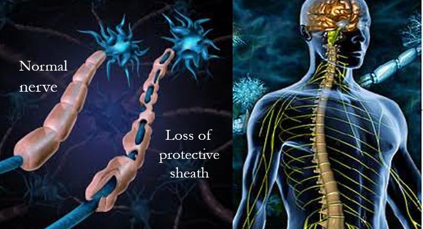 Nerve damage in MS