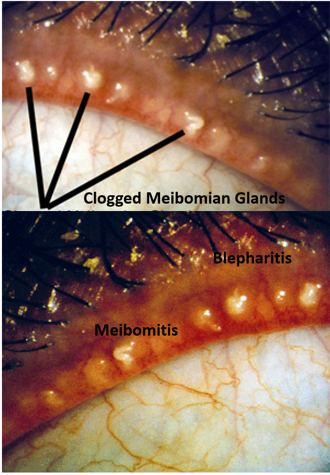 Meibomian gland clogging