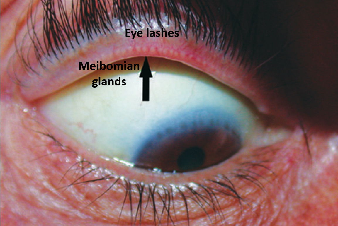 eyelid glands