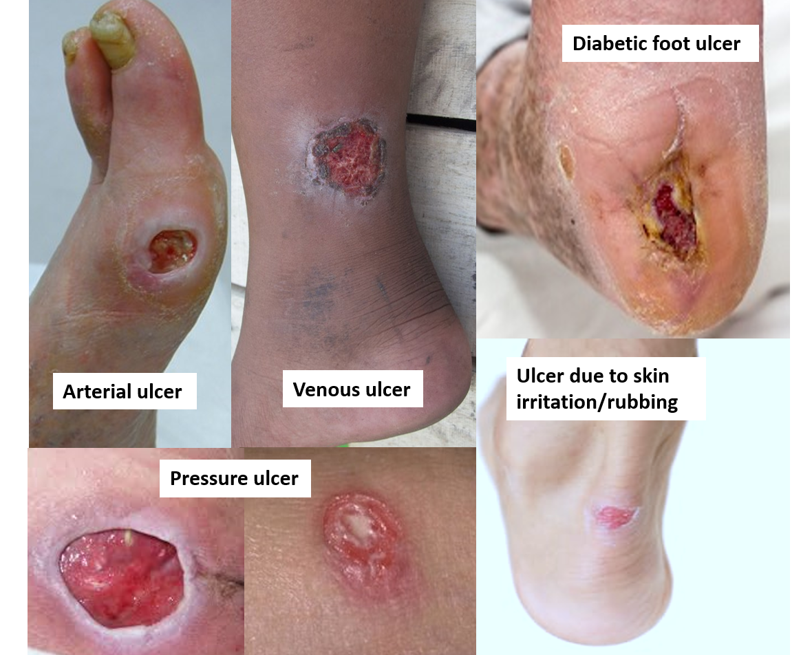 Types of Skin Ulcers