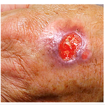 skin ulcer
