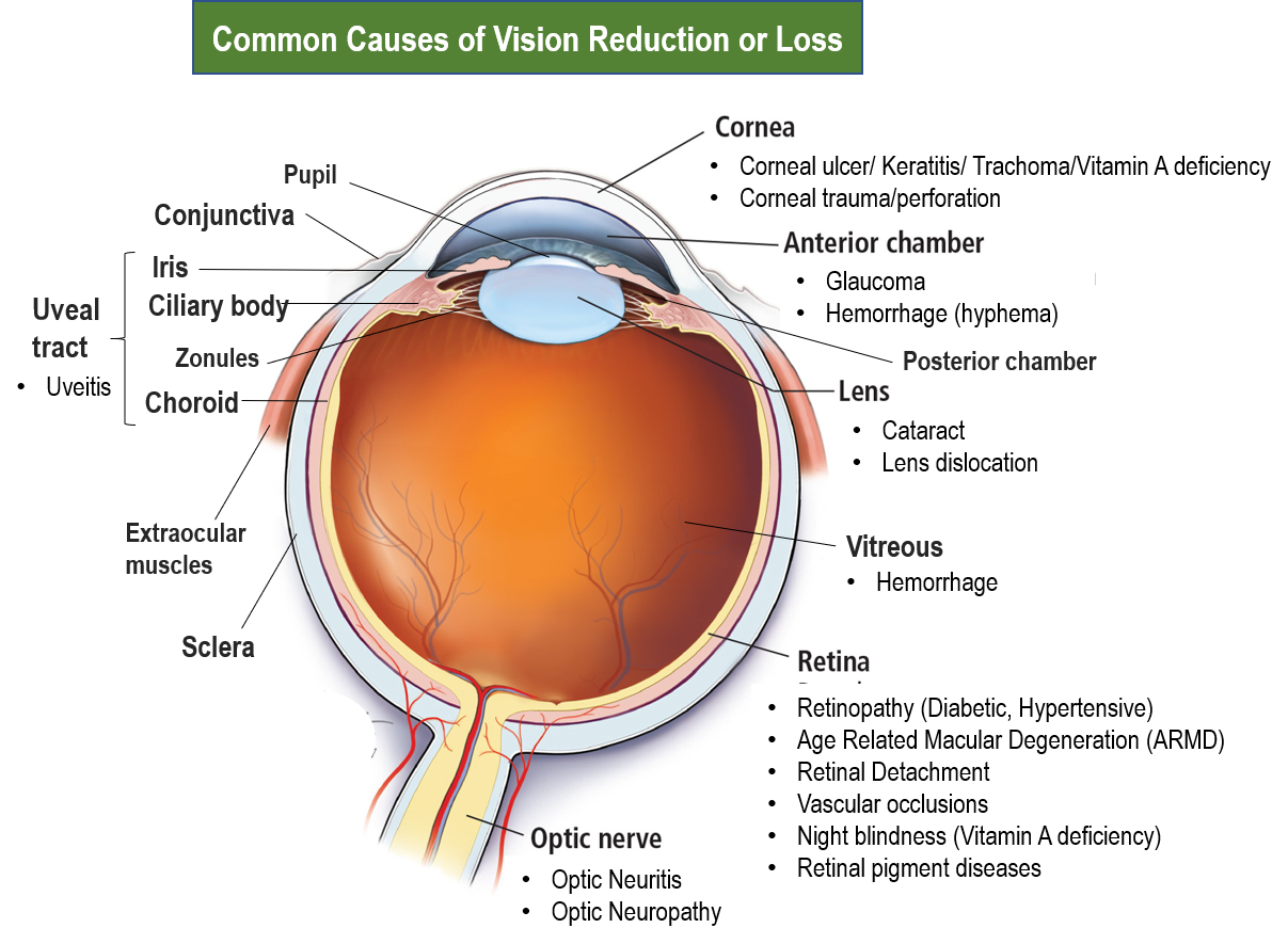 Vision reduction