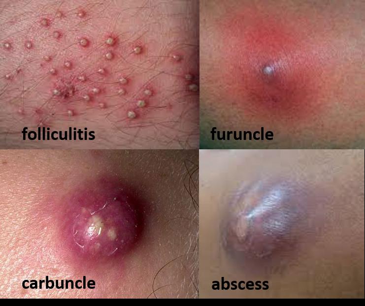 folliculitis furuncle