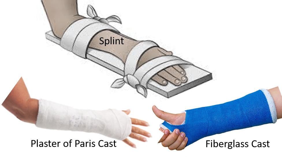 Fracture first aid