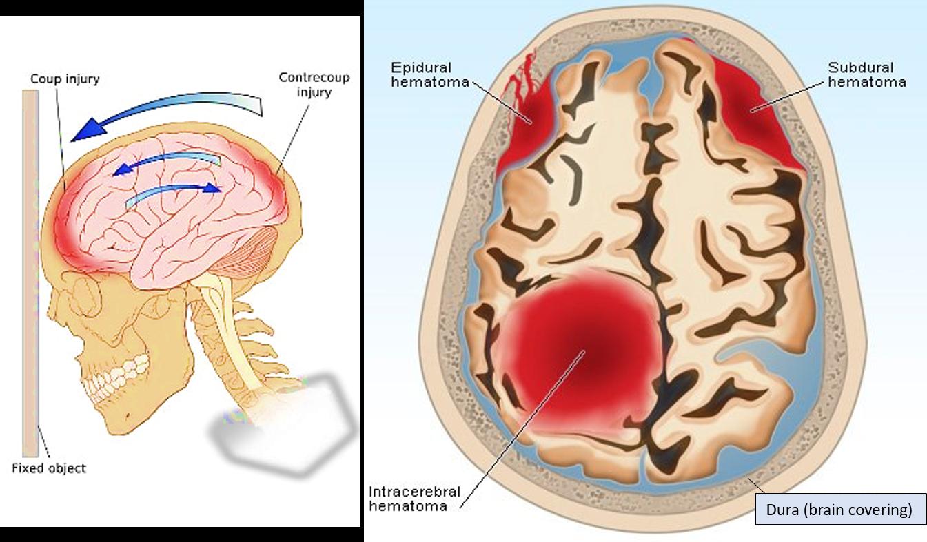 hematoma brain