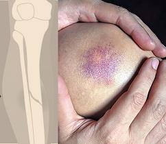 acute blunt injuries